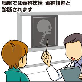 病院では頚椎捻挫・頚椎損傷と診断されます